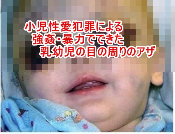 【※閲覧注意】小児性愛犯罪ペドフィリアによる強姦の犠牲になった乳児の写真が惨すぎる(ショッキングな乳児画像を掲載してますのでご注意下さい)