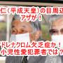 平成天皇「明仁 アキヒト」の目の周りにアザがある!アドレノクロムの禁断症状とよく似ているのだが・・・